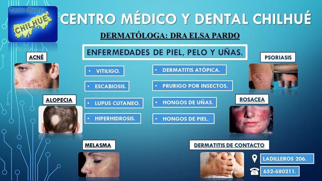 Servicio de Dermatología